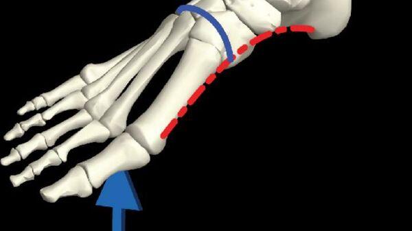 Схема скелета стопы с указанием продольной (красным) и поперечной (синим) арок и типичной схемы нагрузки во время передвижения