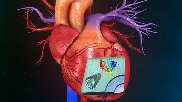 Схема нанокомпозитной конструкции на инфаркте миокарда сердца