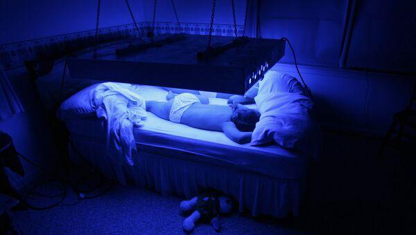 Мальчик, страдающий редким генетическим заболеванием - синдромом Криглера-Найяра, вынужденный проводить по 10-12 часов в день под специальным облучением