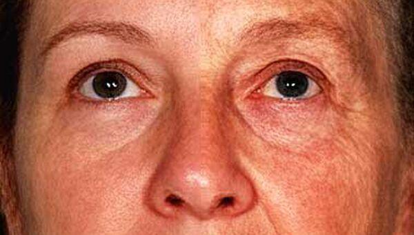 Слева – половина лица 49-летней женщины, справа – лицо 70-летней дамы