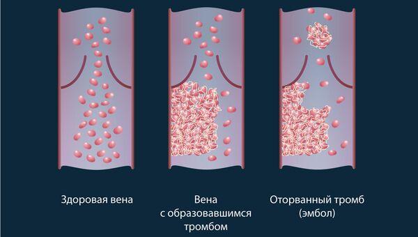 Схема движения клеток с красителем в здоровых сосудах и сосудах с тромбами