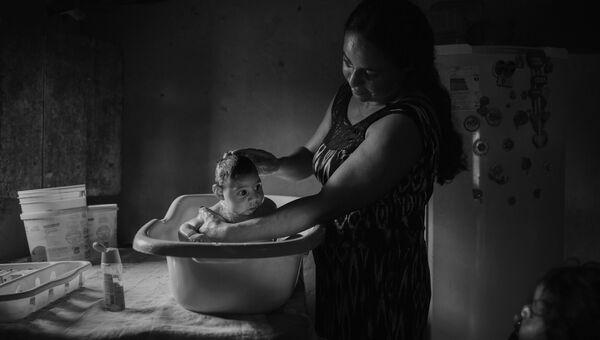 Victims of the Zika Virus фотографа Lalo de Almeida занявшего второе место в категории Проблемы современности в фотоконкурсе World Press Photo