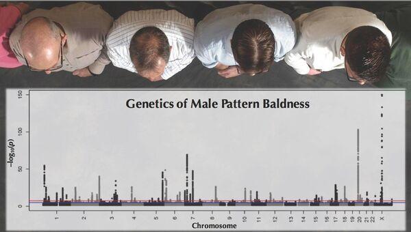Лысеющие мужчины и гены облысения в ДНК человека