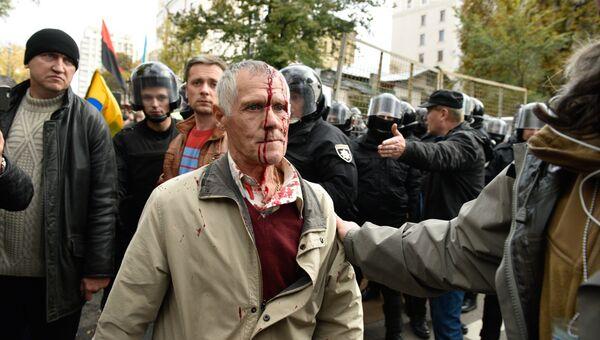 Пострадавший участник акции протеста у здания Верховной рады Украины в Киеве. 17 октября 2017