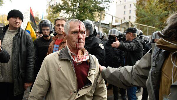 Пострадавший участник акции протеста у здания Верховной рады Украины в Киеве