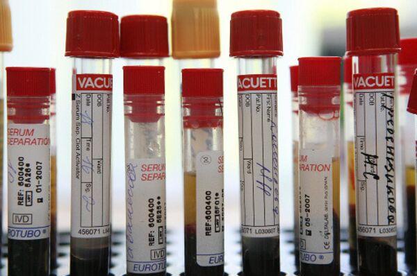 Определены генные характеристики первого российского вируса А/H1N1