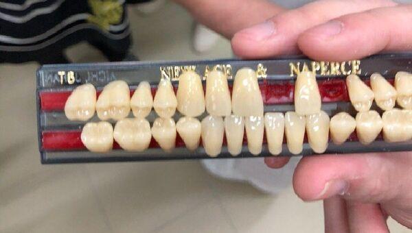 Зубные протезы, напечатанные на 3D-принтере, студентами СПбГУ из команды CeramicPrints