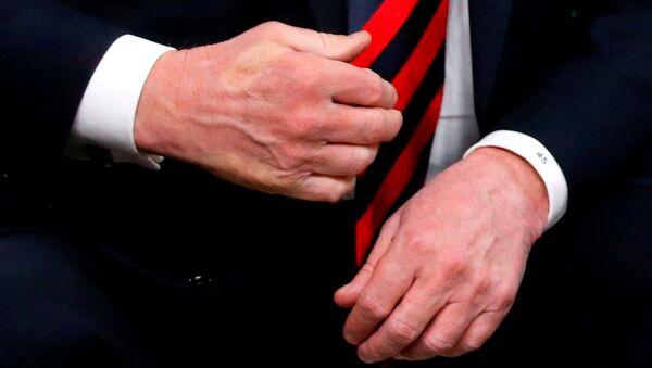 Отпечаток пальца французского президента Эммануэля Макрона на руке президента США Дональда Трампа после того, как они обменялись рукопожатием во время двусторонней встречи на саммите G7 в Шарлеоике, Квебек, Канада. 8 июня 2018