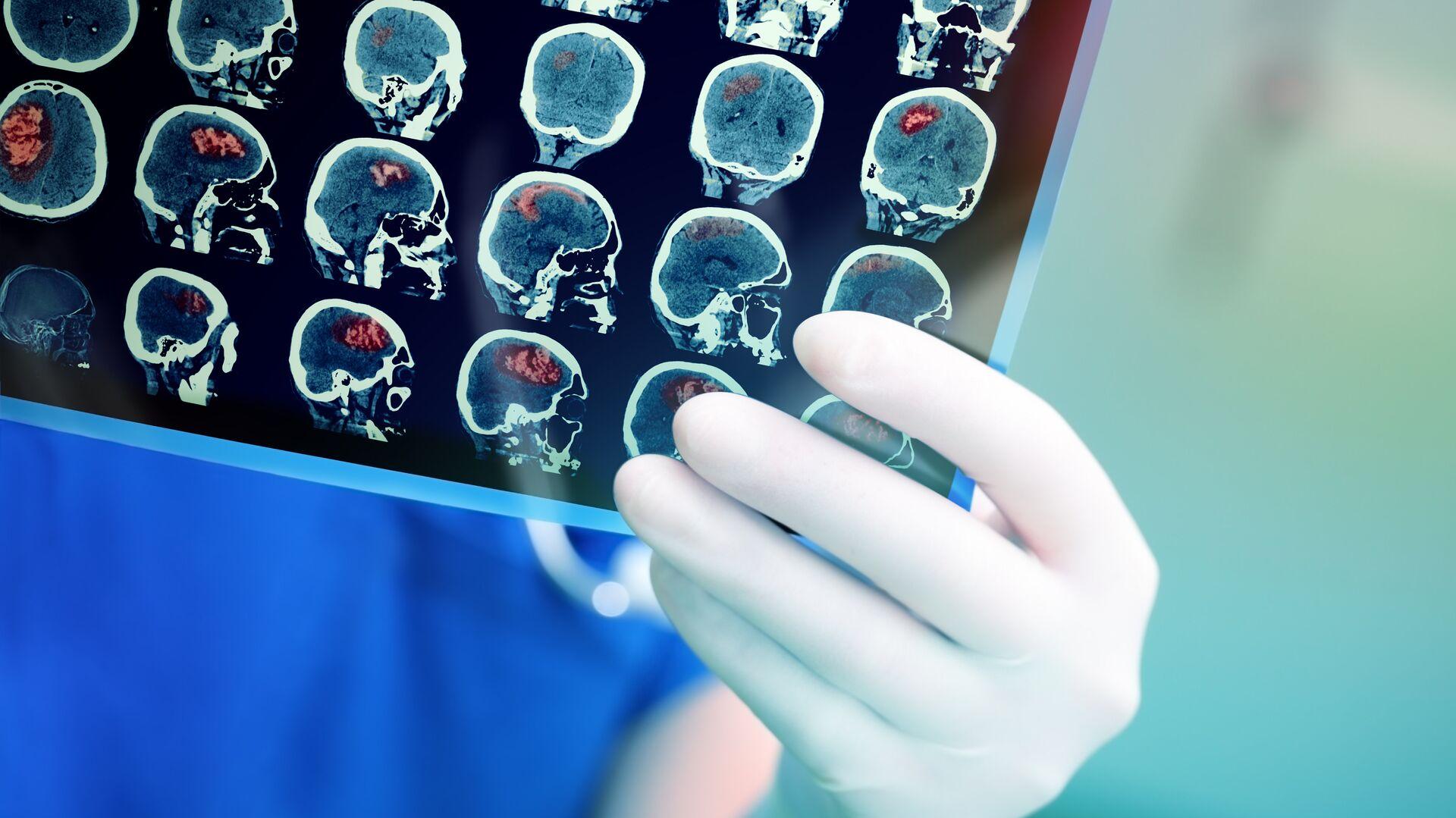 Врач смотрит результаты КТ головного мозга пациента - РИА Новости, 1920, 02.03.2021