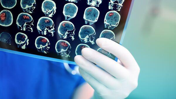Врач смотрит результаты КТ головного мозга пациента