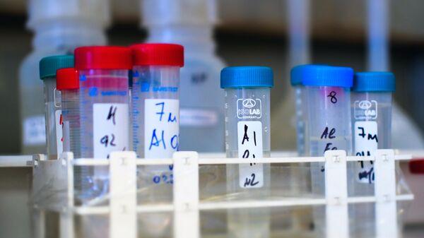 Проверка качества продуктов в лаборатории Роспотребнадзора