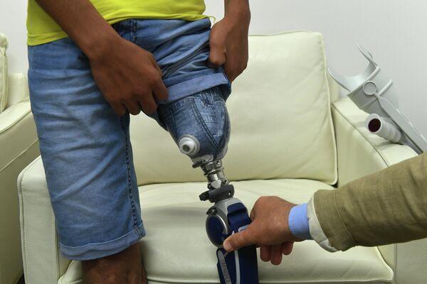Мальчик из Ирака Касим Алькадим показывает протез