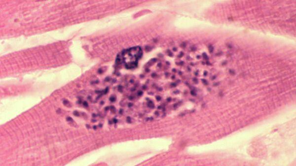Раскрыт механизм поражения человека опасным паразитом