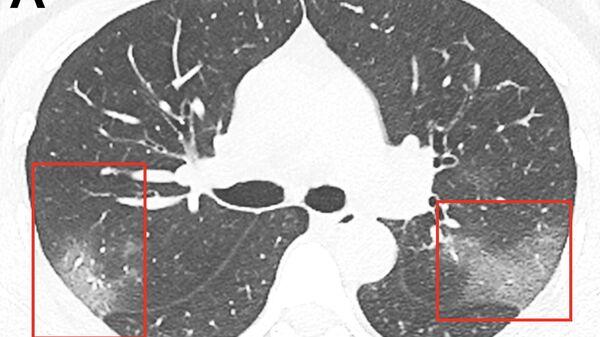 Изображение легких, пораженных коронавирусом