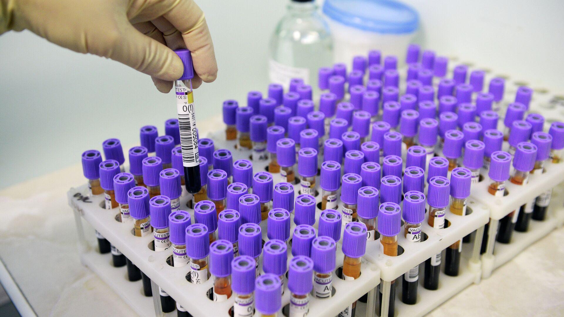 Найден биомаркер рака желудка