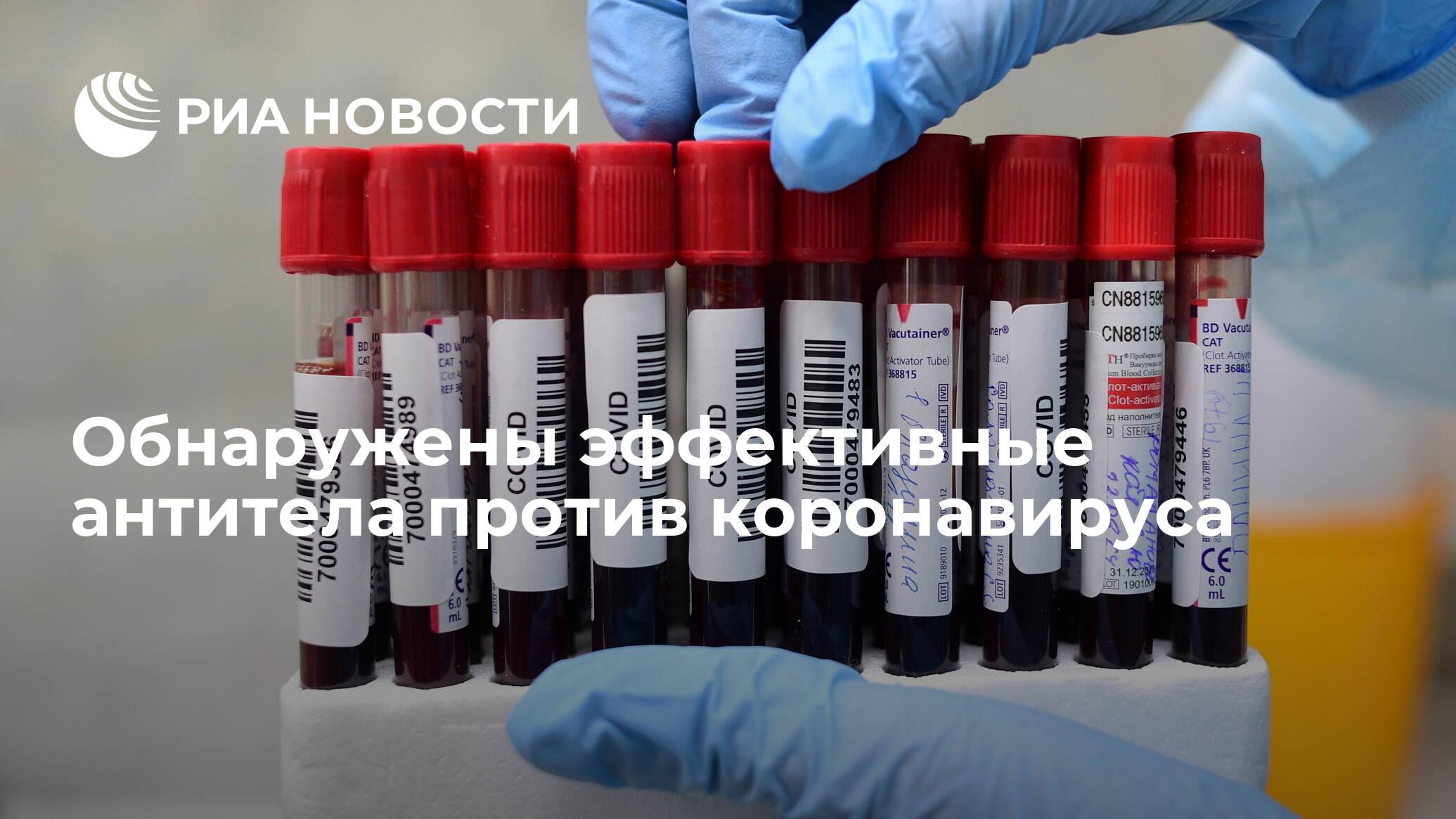 Найдены эффективные антитела против коронавируса